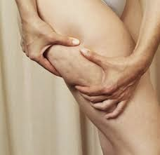 10 Mentiras y Verdades de la Celulitis