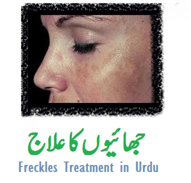 Freckles Removal Tips In Urdu