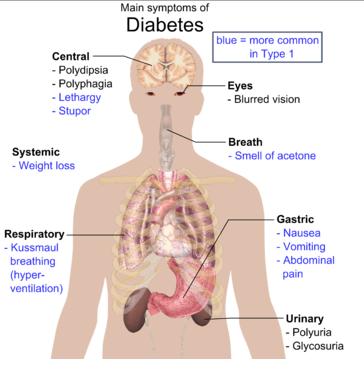 मूत्र में शर्करा की अधिकता का घरेलू देशी ईलाज
