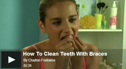 http://funkidos.com/videos-collection/mix-videos/how-to-clean-teeth-with-braces