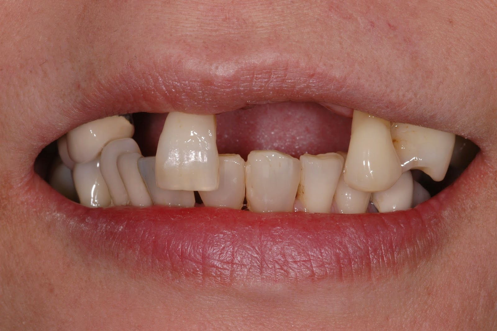 tooth loss treatment in bangalore