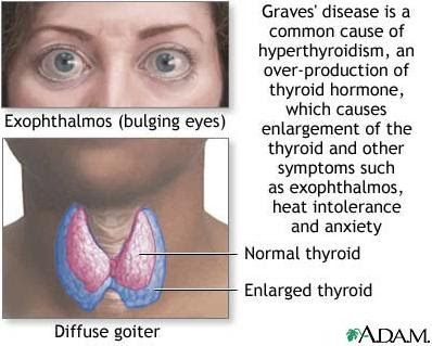 How to Treat Graves' Disease Naturally