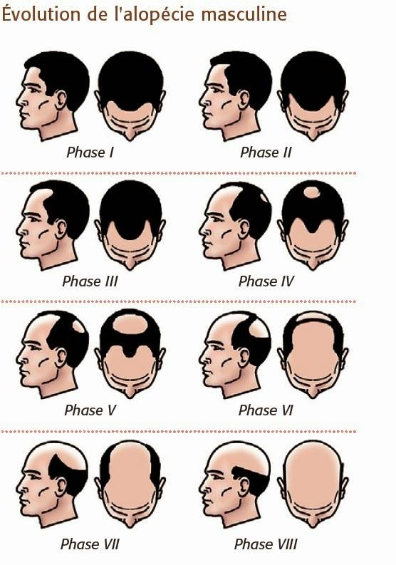 Evolution de l'alopécie en clavitie