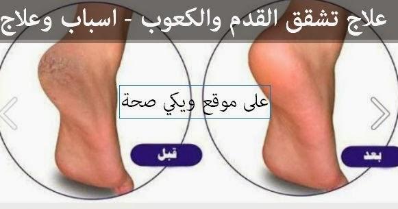 علاج تشقق القدم والكعوب - اسباب وعلاج