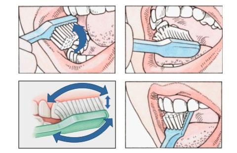 Tips dan Cara Menggosok   Menyikat Gigi Dengan Benar ~ Permathic Blog 0d8629c32f