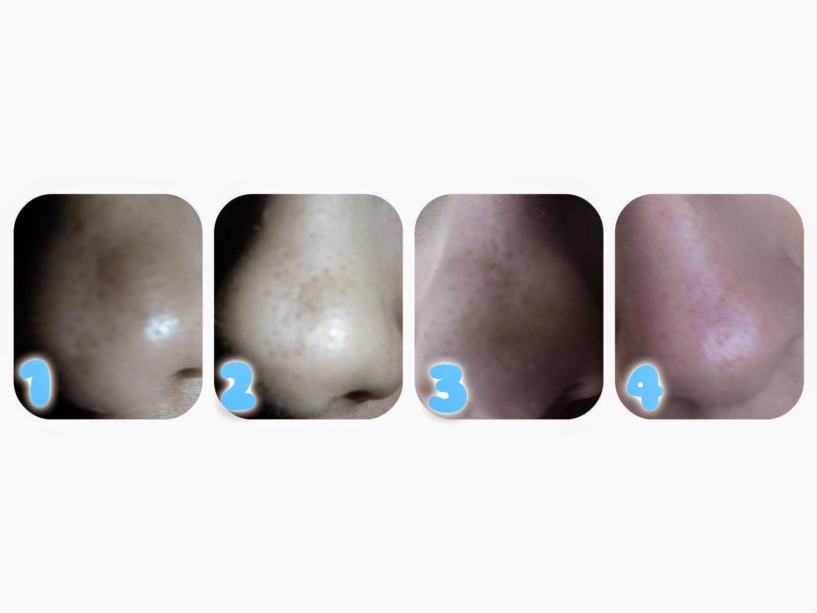 El acné al mamón mensual