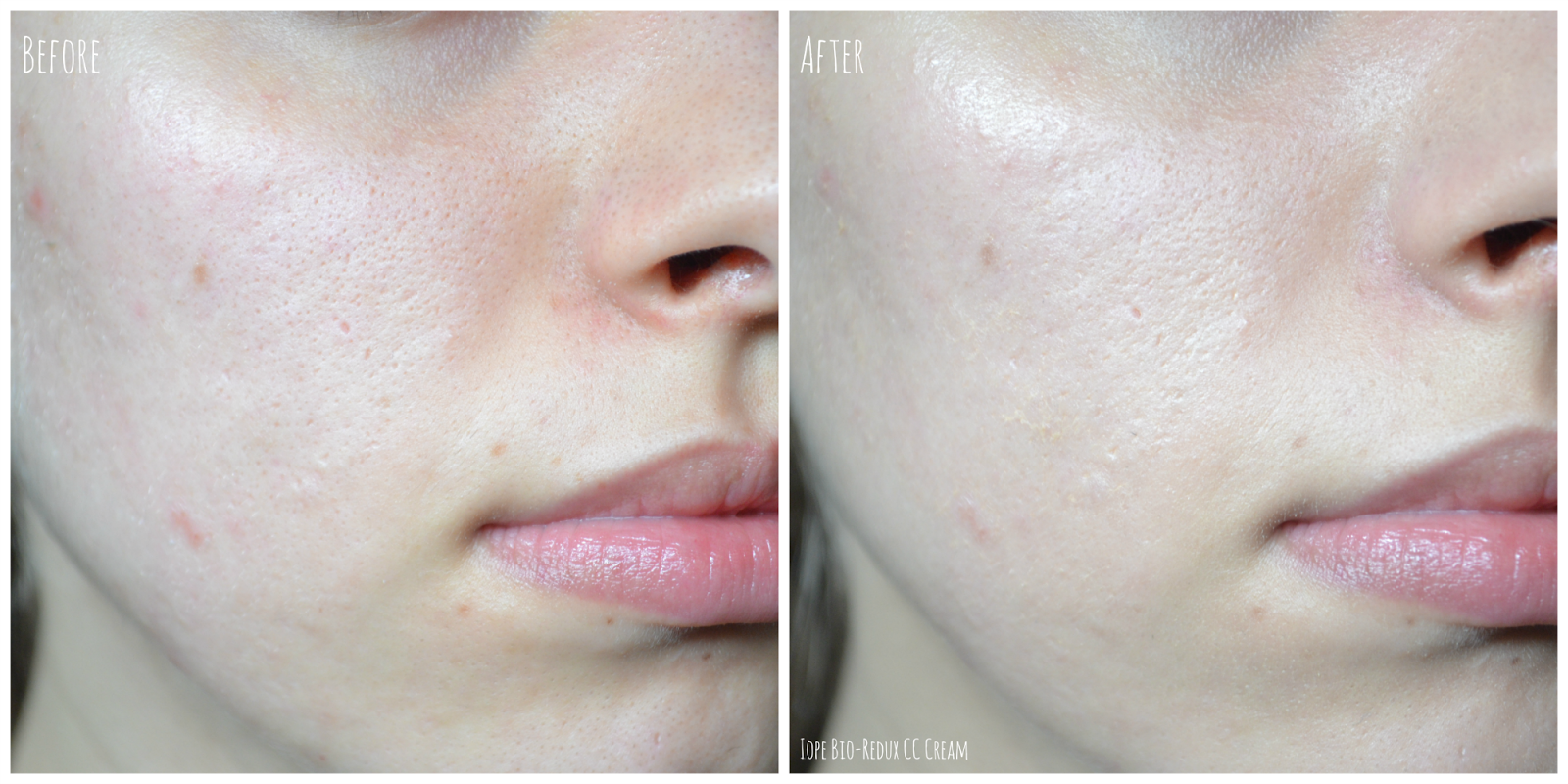 Facial Eczema with Dr Lynn Chiam: Rashes around the Mouth ...