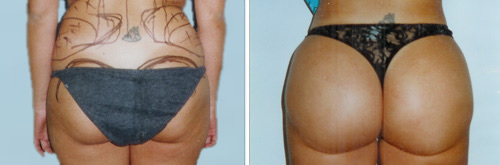 brazilian butt-lift before and after photos