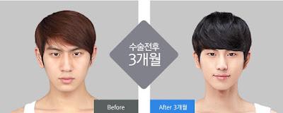 sebelum dan sesudah operasi plastik untuk pria di wonjin-3