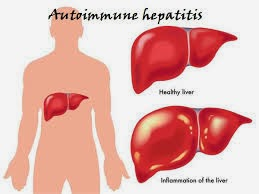 Autoimmune Hepatitis: Causes, Symptoms,Risk factors, Complications, Diagnosis, Treatment and drugs