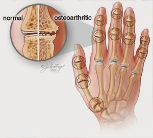 Cara Mengobati Osteoarthritis
