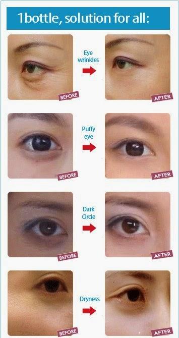 eye effect3