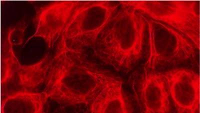 buongiornolink - Rivoluzione nella lotta ai tumori arriva il biochip che rimuove le cellule malate