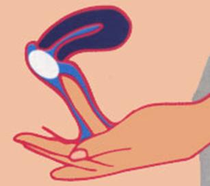 Como aliviar los picores vaginales
