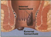 Nursing Care Plan for Hemorrhoids
