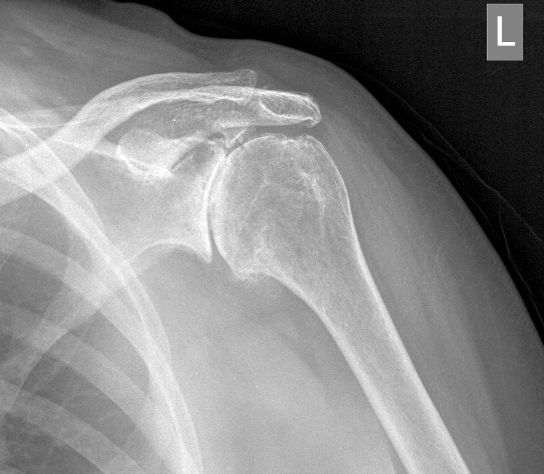 acromial spur relationship to aging and disability