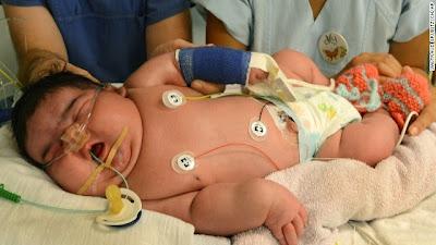 Bebê mais pesado da Alemanha, nasce de parto normal, pesando mais de 6 kg.