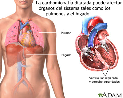 La cardiomiopatía