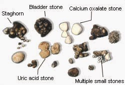 macam macam batu ginjal