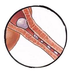 Мышка кирпич влагалище зуд