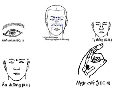 Chữa bệnh viêm mũi dị ứng quanh năm bằng bấm huyệt