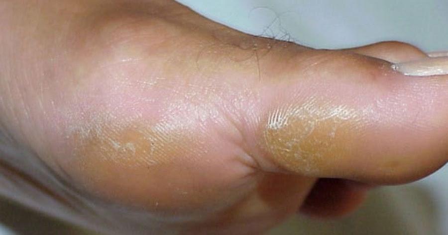 C mo quitar callos o durezas de los pies viralitox - Como mantener los pies calentitos ...