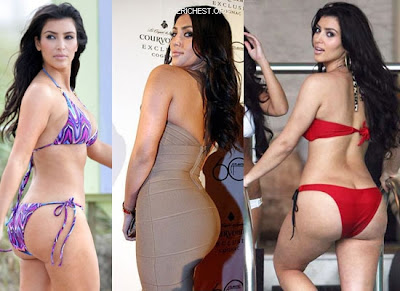 kim kardashian bum implants before and after pics