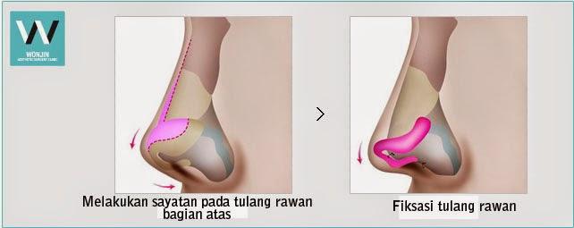 Operasi tulang rawan di Bedah Plastik Wonjin