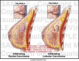 Carcinoma lobulillar invasivo - Síntomas y causas -