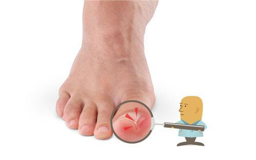 El ungüento para los pies del hongo y el olor a buen precio