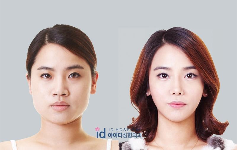 S Line Rhinoplasty ID Hospital Korea Plas...