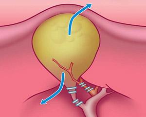 Этапы лапароскопической холецистэктомии —  клипирование пузырного протока и артерии