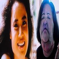 Ex-modelo sul coreana fica irreconhecível ao injetar óleo de cozinha em seu rosto