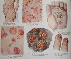 sifilis,penyakit sifilis