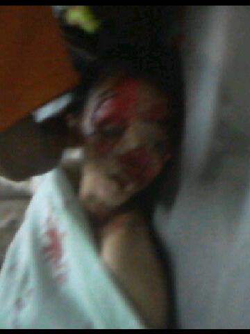 Kecelakaan on Kecelakaan Saiful Jamil 7 Penampakan 3   Genuardis Portal