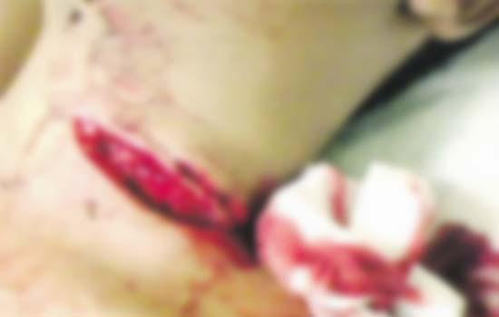 Penyamun kelar leher polis wanita sampai putus di Danau Kota