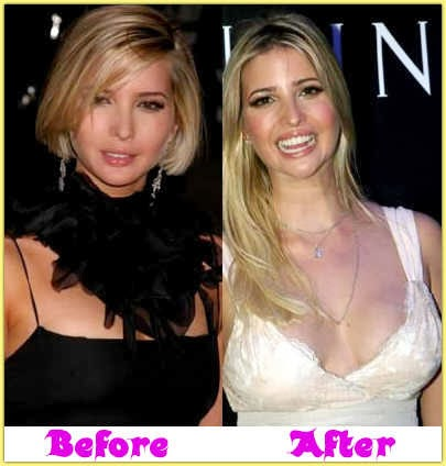 Did ivanka trump have a boob job