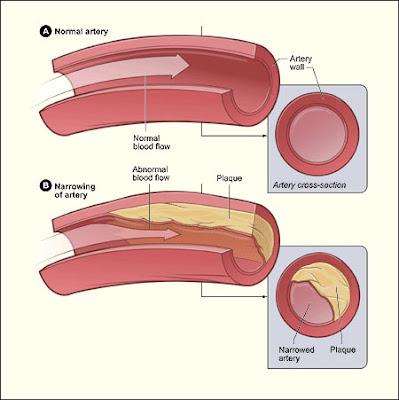 total kolesterol