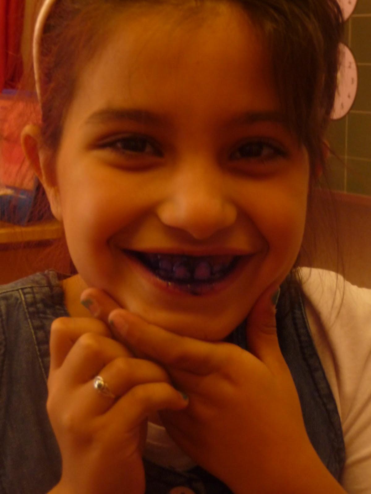 image Kim met elektrische tandenborstel