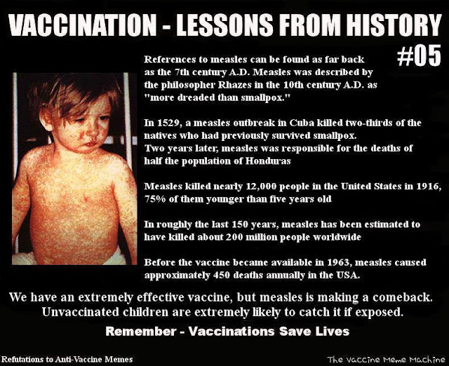 Before Vaccines: Measles: Common, yes; Mild, no