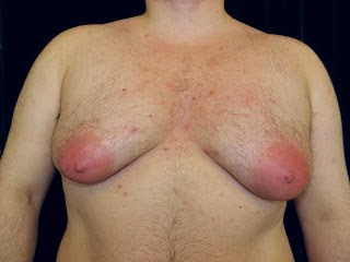 Gynecomastia Surgery San Jose, California