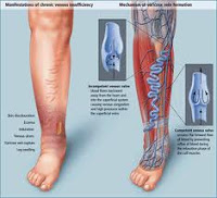 symptoms and signs of varicose veins