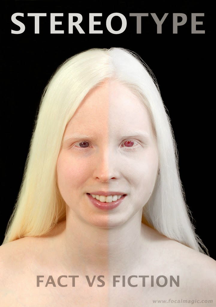 Community Village: Types of Albinism
