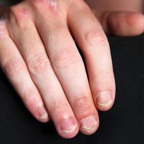 gambar penyakit kulit