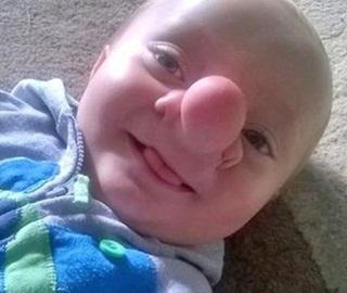 Astaga..!! Otak Bayi Ini Tumbuh di Hidung