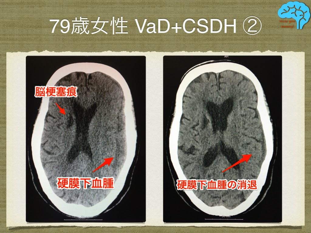 脳血管性認知症と慢性硬膜下血腫 頭部画像