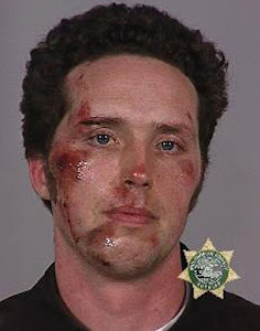 Beaten by police