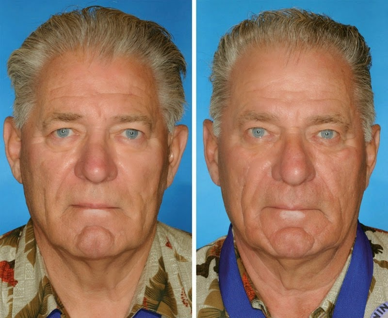 What 7 Smoker Vs. Non-Smoker Identical Twins Look Like After Years of Smoking