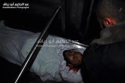 Imagens fortes-atenção- crimes de Israel - foto 23