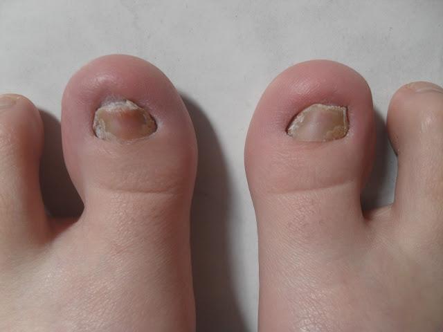 tırnak mantarı tedavisi, ayak tırnak mantarı tedavisi